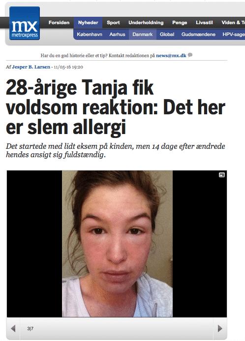 metroexpress allergi tanja